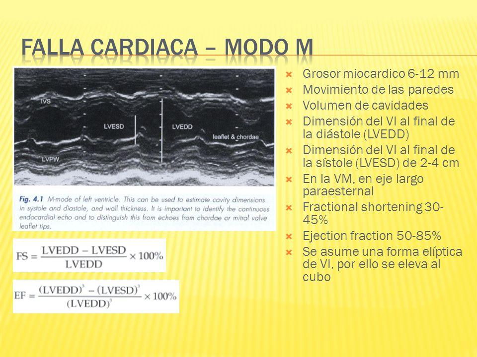 Falla cardiaca – modo m Grosor miocardico 6-12 mm