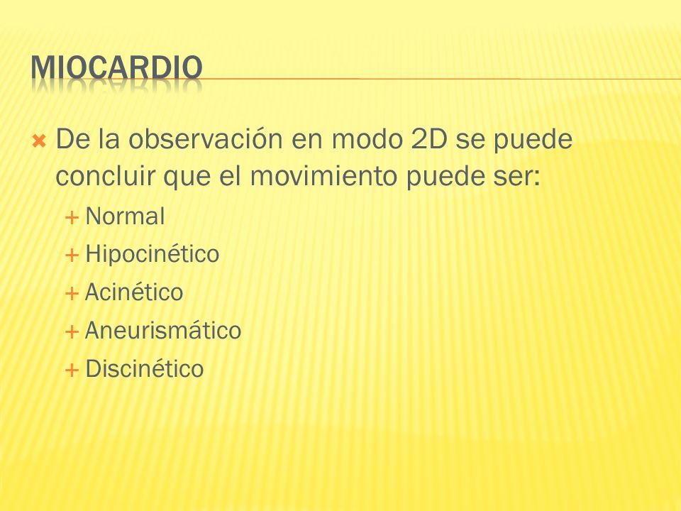 Miocardio De la observación en modo 2D se puede concluir que el movimiento puede ser: Normal. Hipocinético.