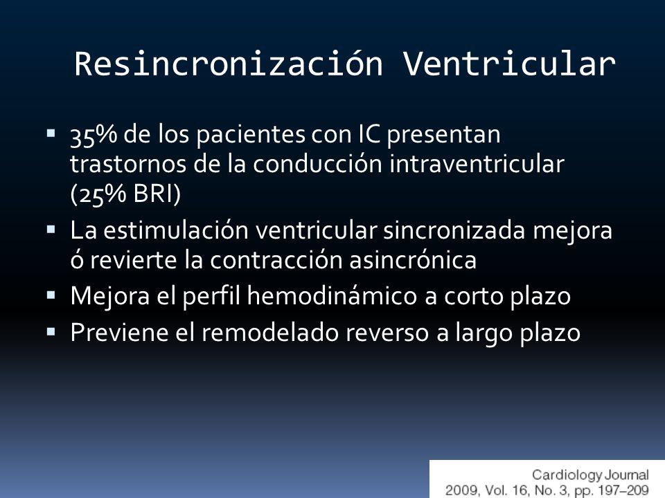 Resincronización Ventricular