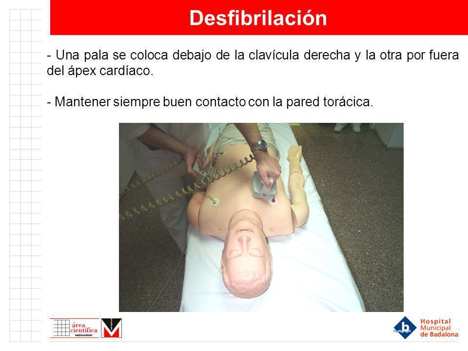 Desfibrilación - Una pala se coloca debajo de la clavícula derecha y la otra por fuera del ápex cardíaco.