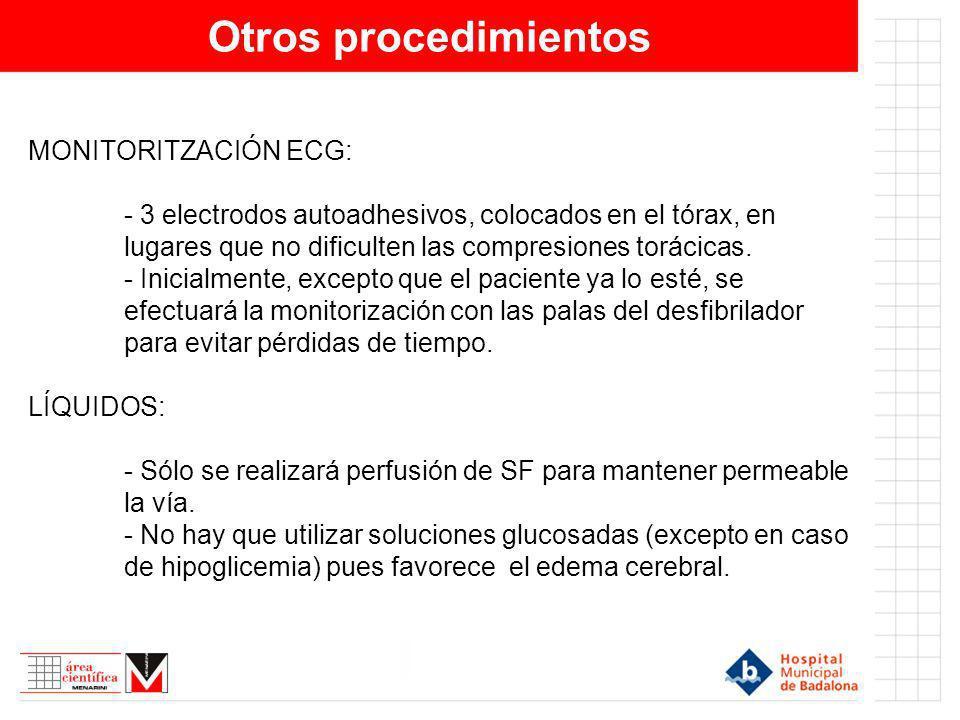 Otros procedimientos MONITORITZACIÓN ECG: