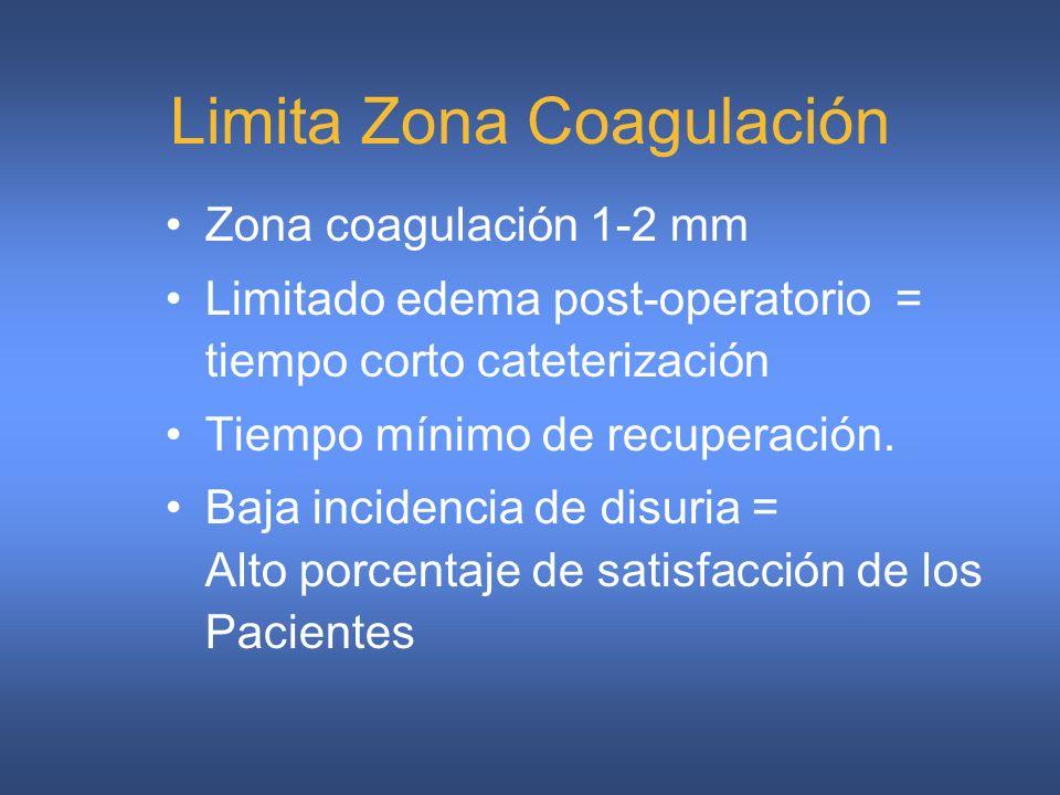 Limita Zona Coagulación