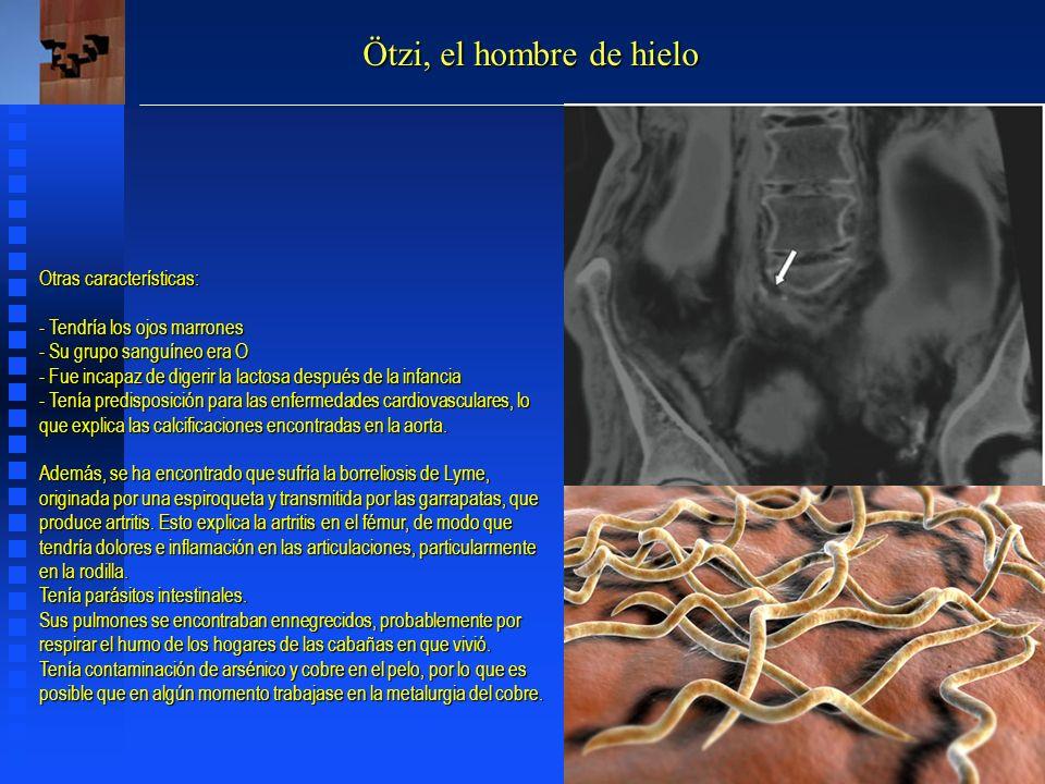 Ötzi, el hombre de hielo Otras características: