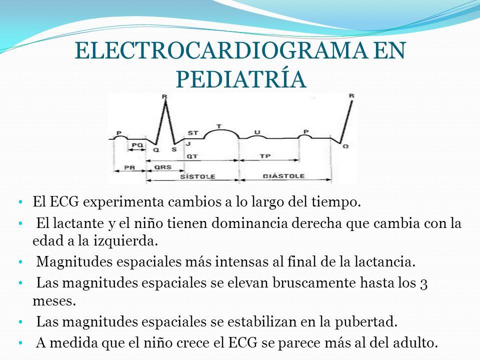 Electrocardiograma en pediatríA