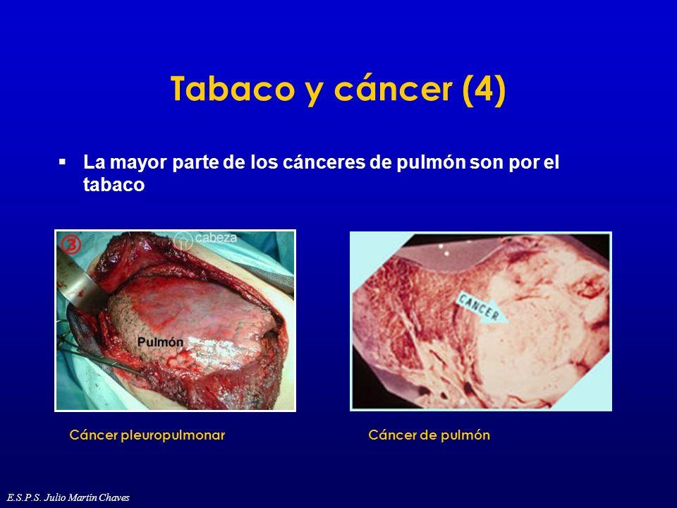 Tabaco y cáncer (4) La mayor parte de los cánceres de pulmón son por el tabaco. Cáncer pleuropulmonar.
