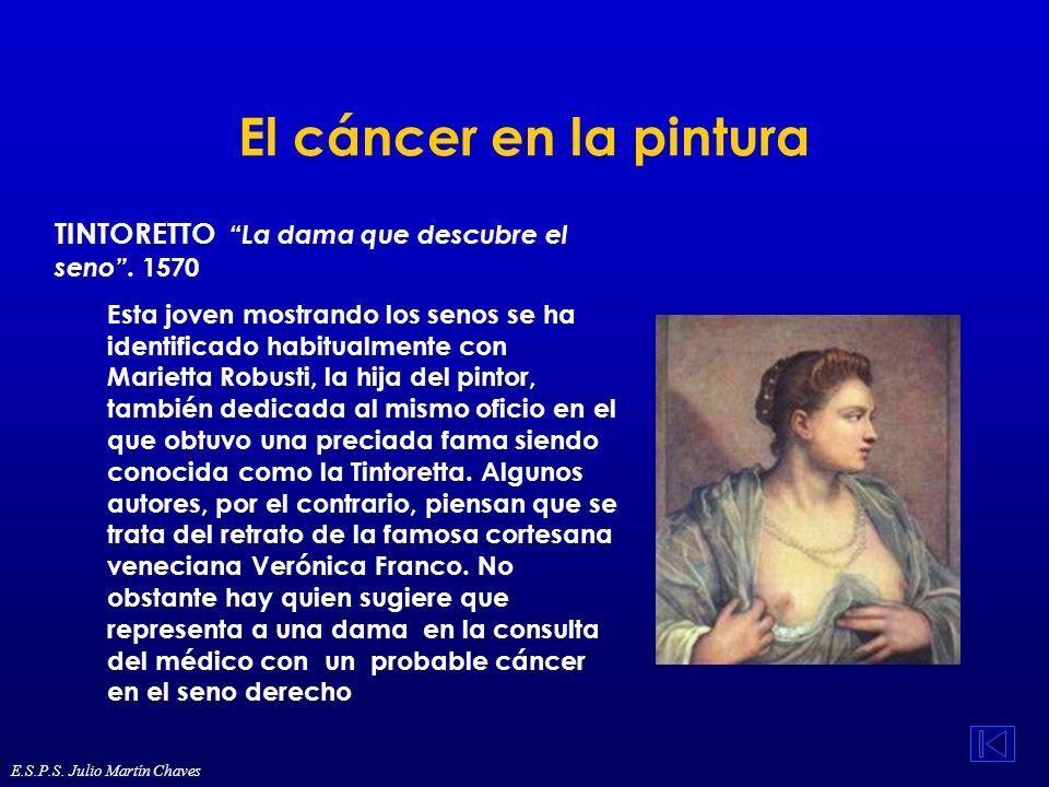 El cáncer en la pintura TINTORETTO La dama que descubre el seno . 1570.