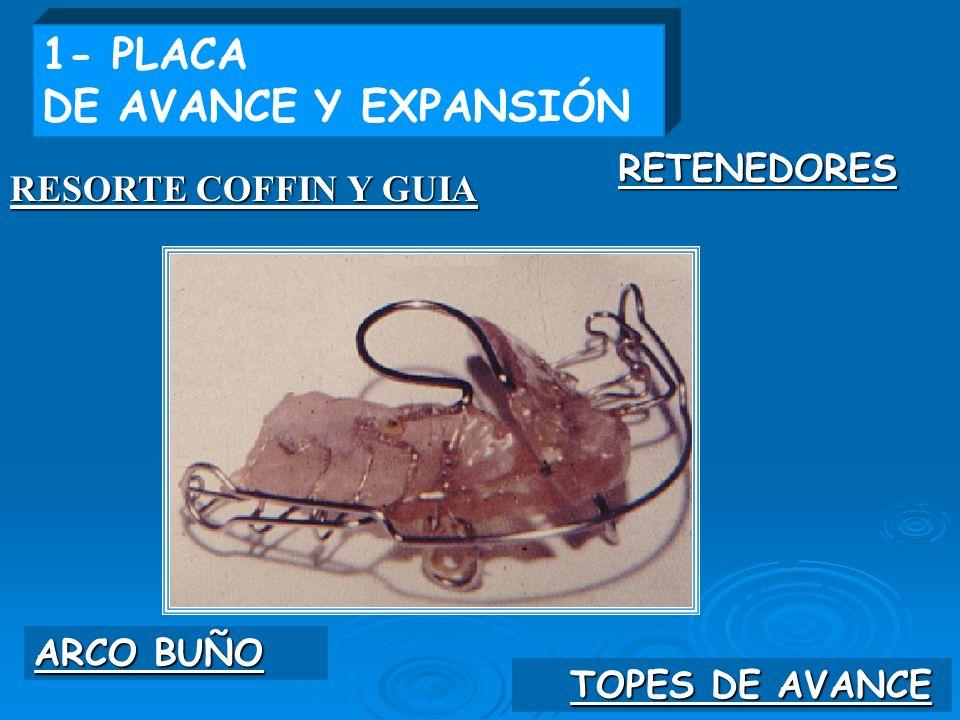 1- PLACA DE AVANCE Y EXPANSIÓN RETENEDORES RESORTE COFFIN Y GUIA