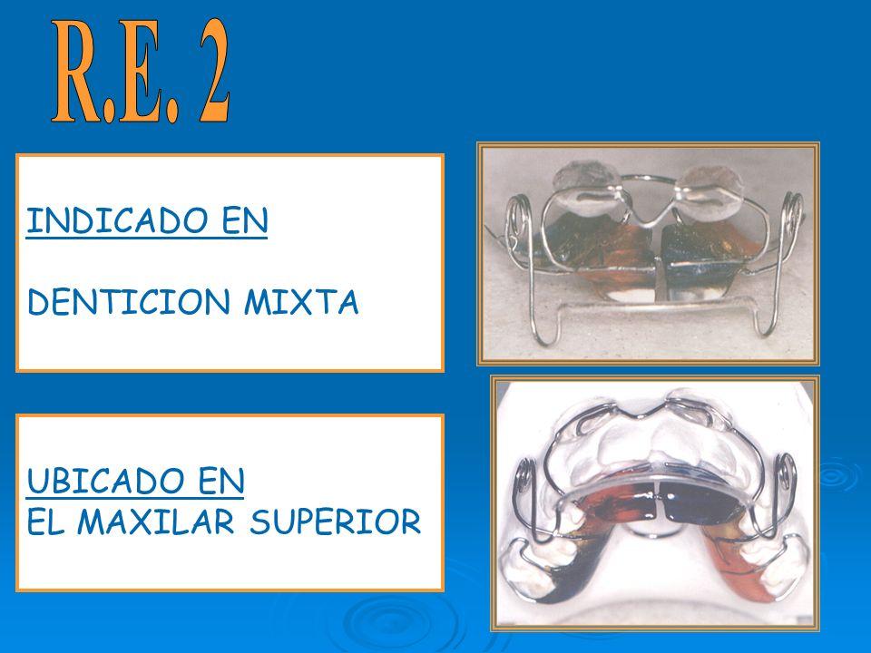 R.E. 2 INDICADO EN DENTICION MIXTA UBICADO EN EL MAXILAR SUPERIOR