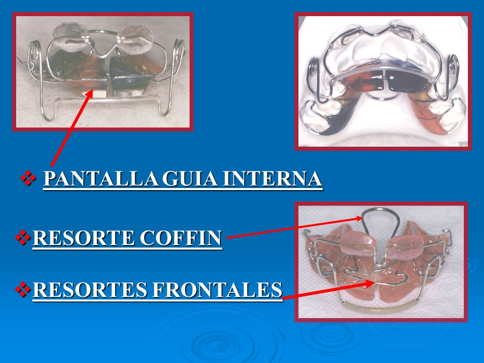 PANTALLA GUIA INTERNA RESORTE COFFIN RESORTES FRONTALES