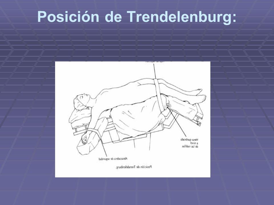 Posición de Trendelenburg: