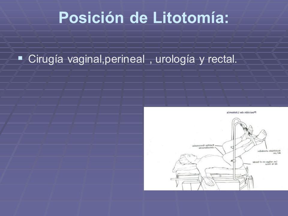 Posición de Litotomía: