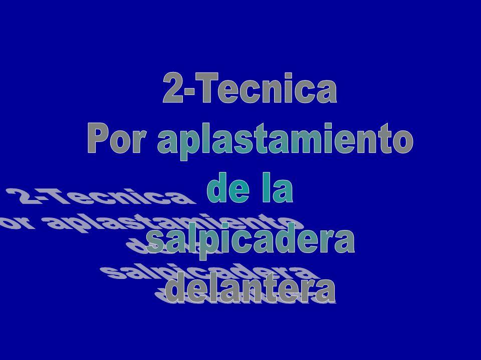2-Tecnica Por aplastamiento de la salpicadera delantera