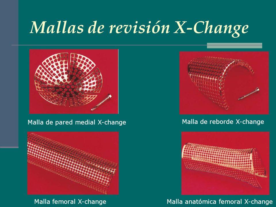 Mallas de revisión X-Change
