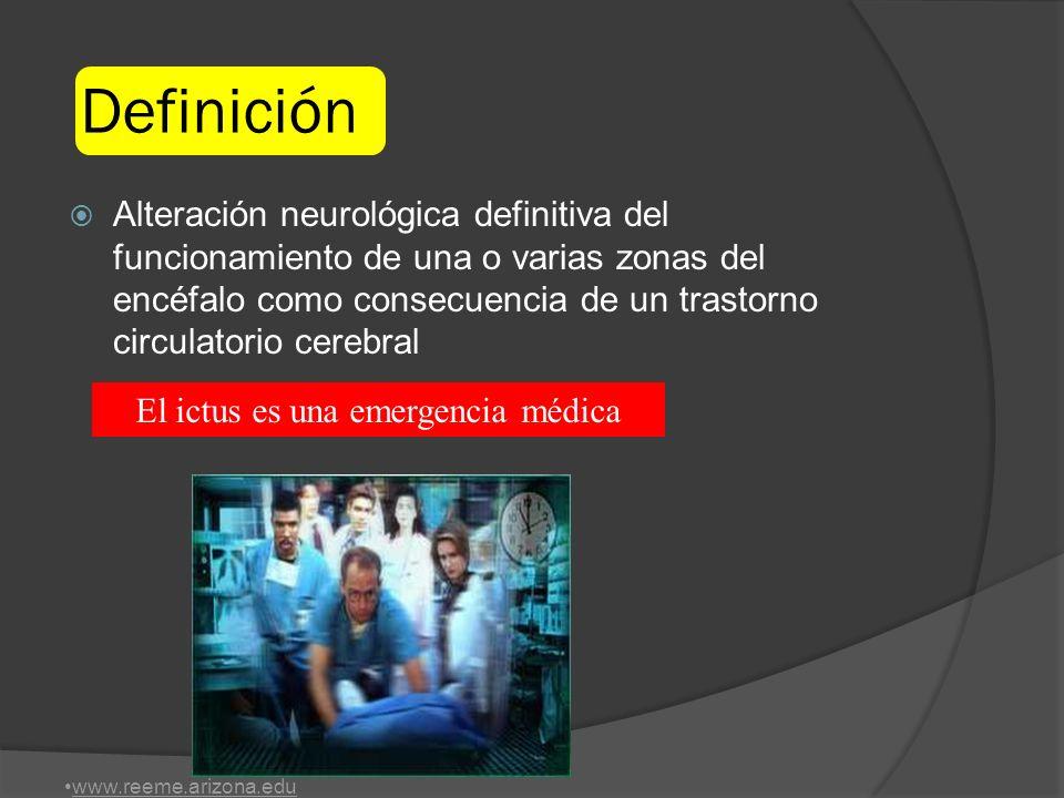 El ictus es una emergencia médica