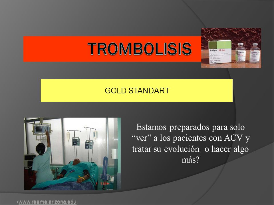 TROMBOLISIS GOLD STANDART. Estamos preparados para solo ver a los pacientes con ACV y tratar su evolución o hacer algo más