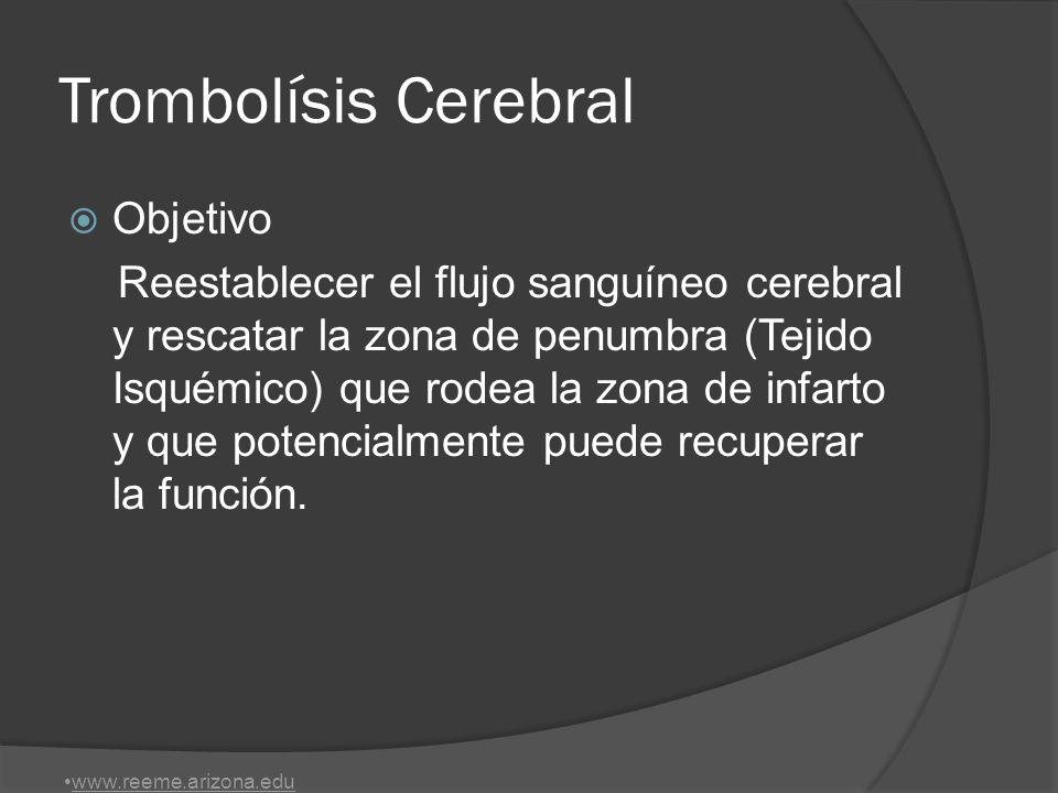 Trombolísis Cerebral Objetivo