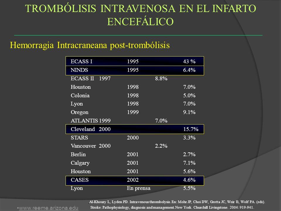 TROMBÓLISIS INTRAVENOSA EN EL INFARTO ENCEFÁLICO