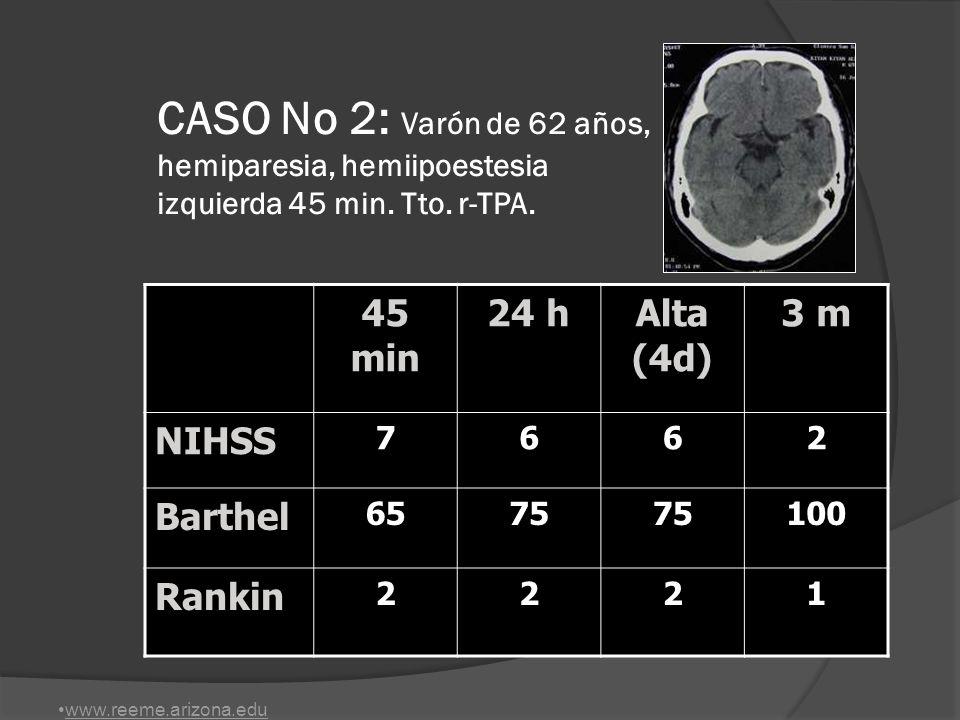 CASO No 2: Varón de 62 años, hemiparesia, hemiipoestesia izquierda 45 min. Tto. r-TPA.