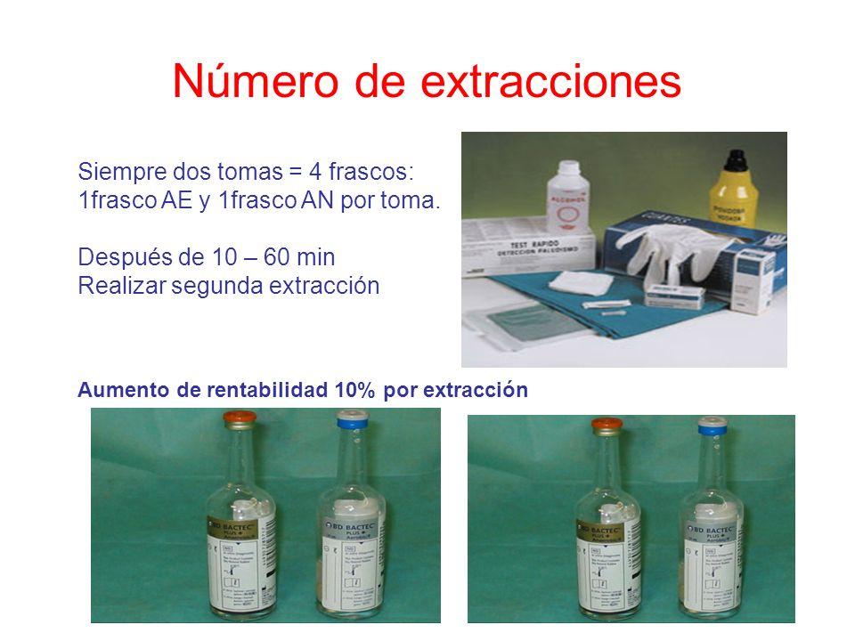 Número de extracciones