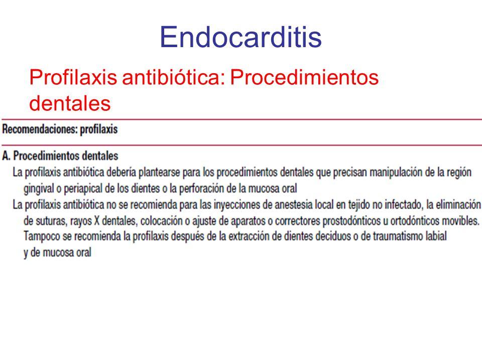 Endocarditis Profilaxis antibiótica: Procedimientos dentales