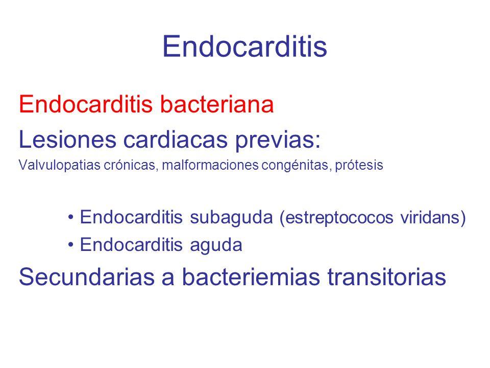 Endocarditis Endocarditis bacteriana Lesiones cardiacas previas: