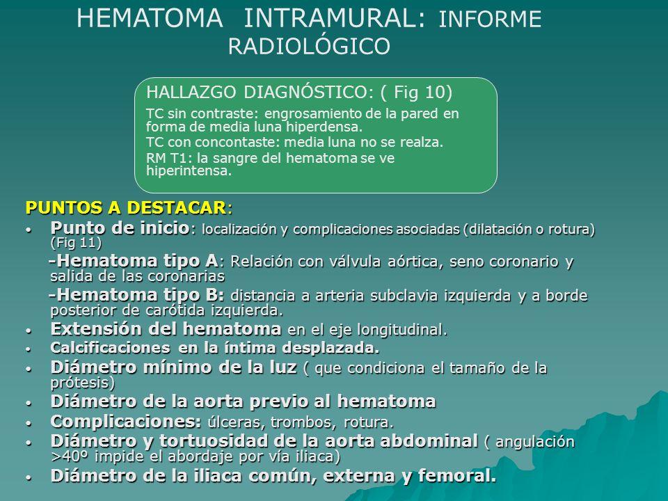 HEMATOMA INTRAMURAL: INFORME RADIOLÓGICO