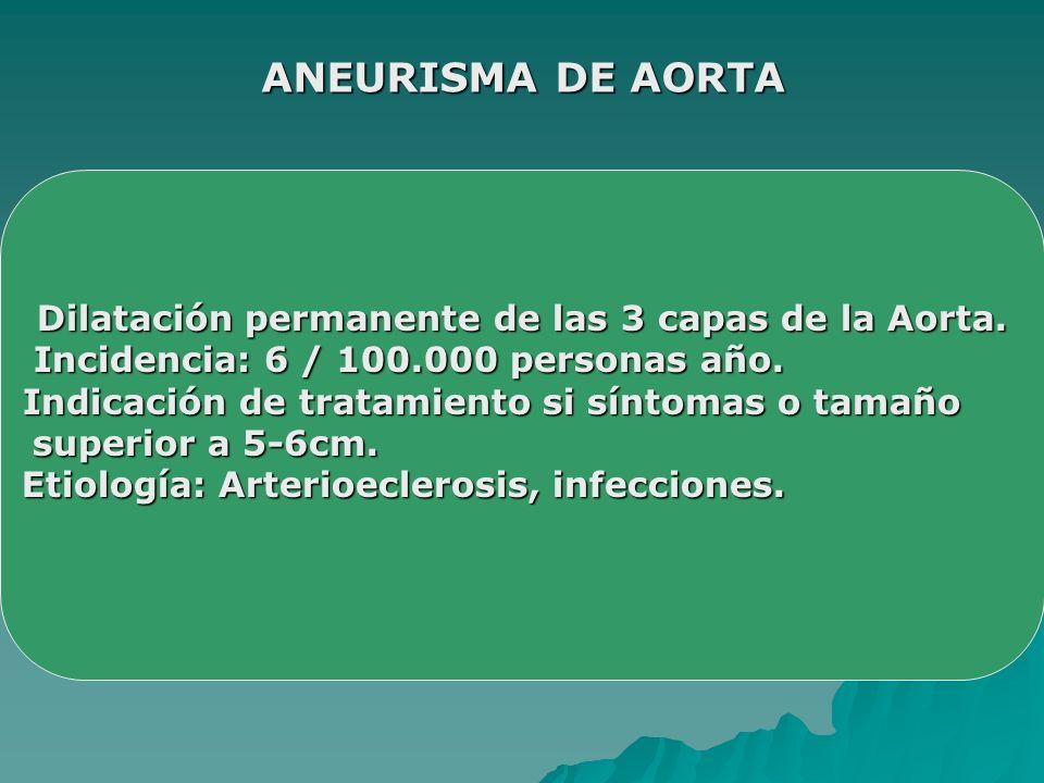 ANEURISMA DE AORTA Dilatación permanente de las 3 capas de la Aorta.