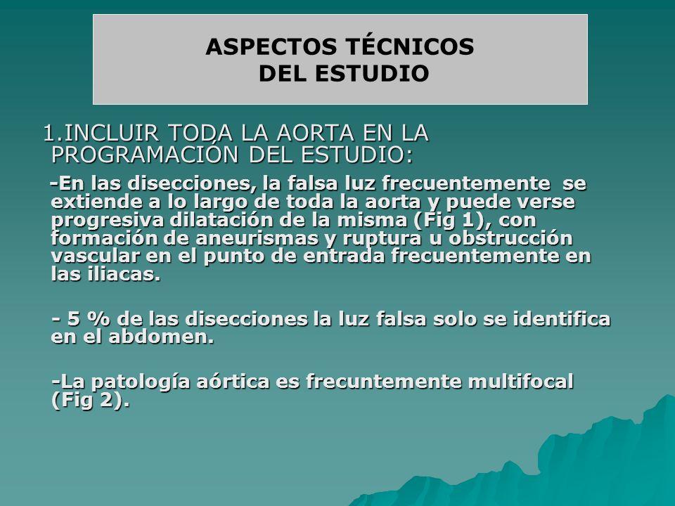 ASPECTOS TÉCNICOS DEL ESTUDIO