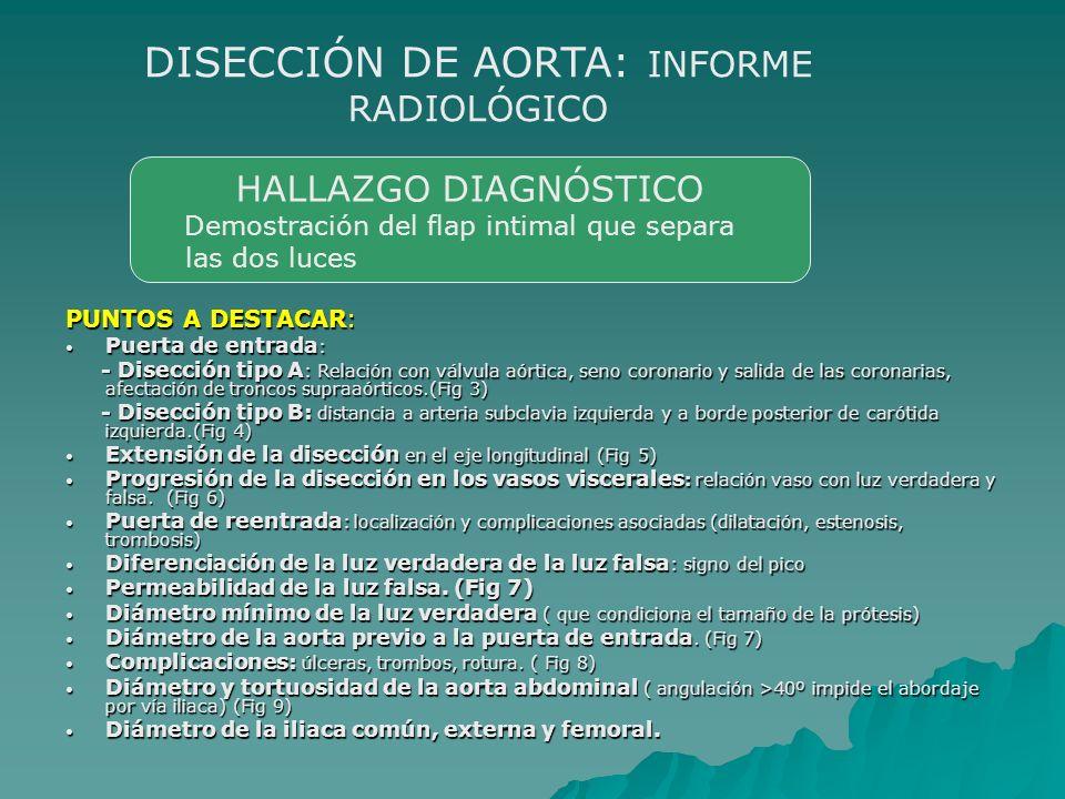 DISECCIÓN DE AORTA: INFORME RADIOLÓGICO