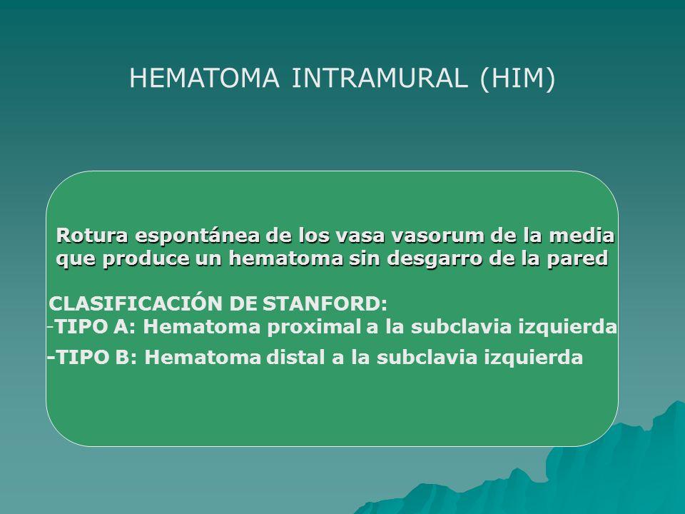HEMATOMA INTRAMURAL (HIM)