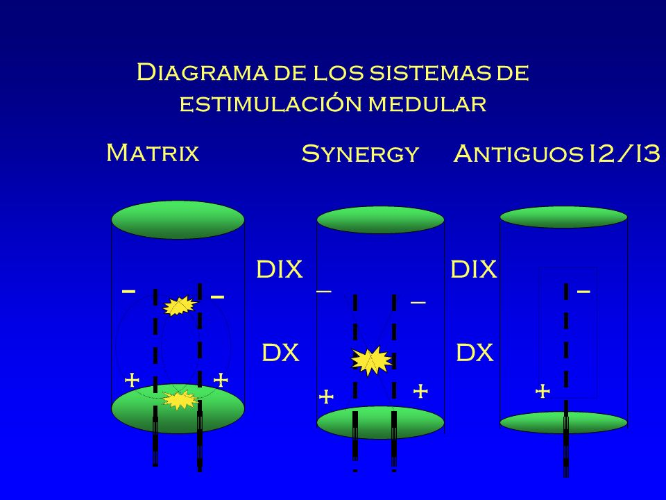 Diagrama de los sistemas de estimulación medular