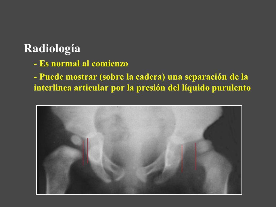 Radiología - Es normal al comienzo