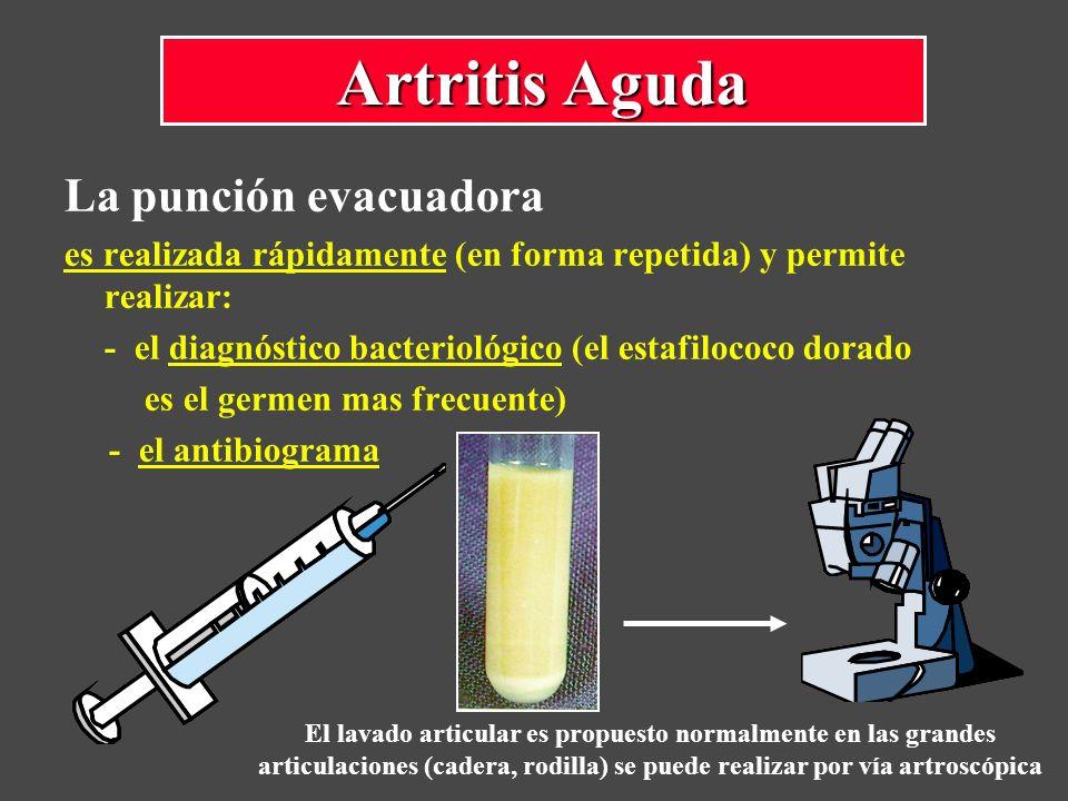 Artritis Aguda La punción evacuadora