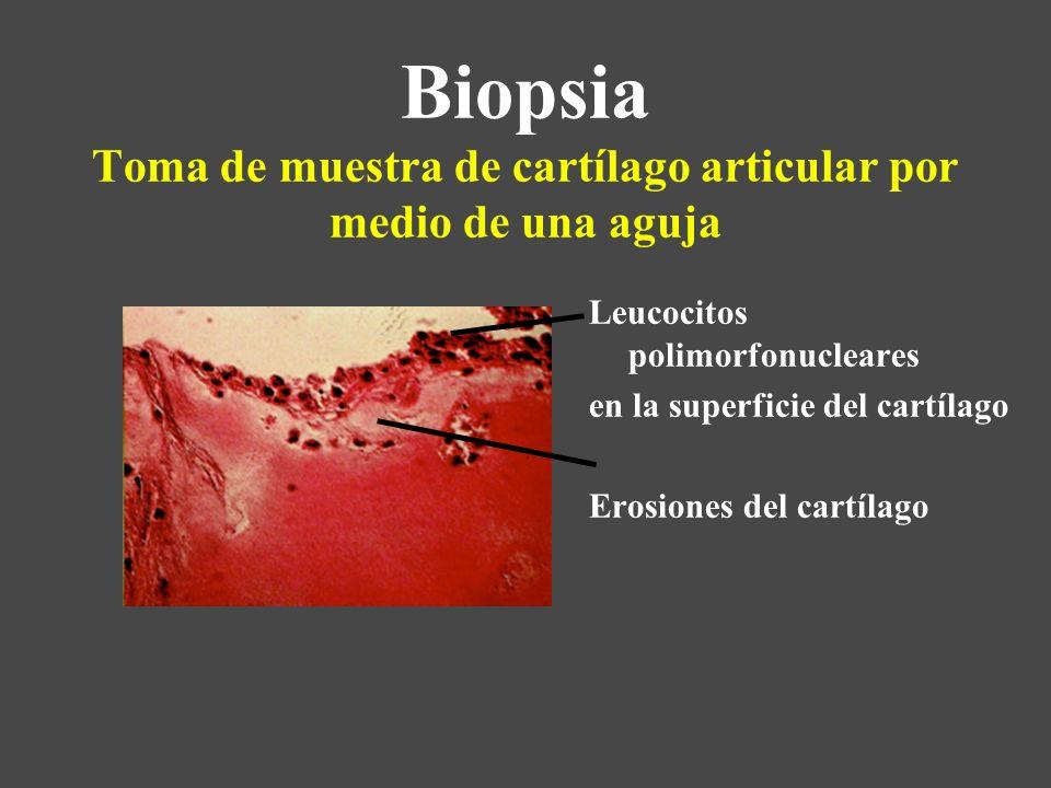 Biopsia Toma de muestra de cartílago articular por medio de una aguja