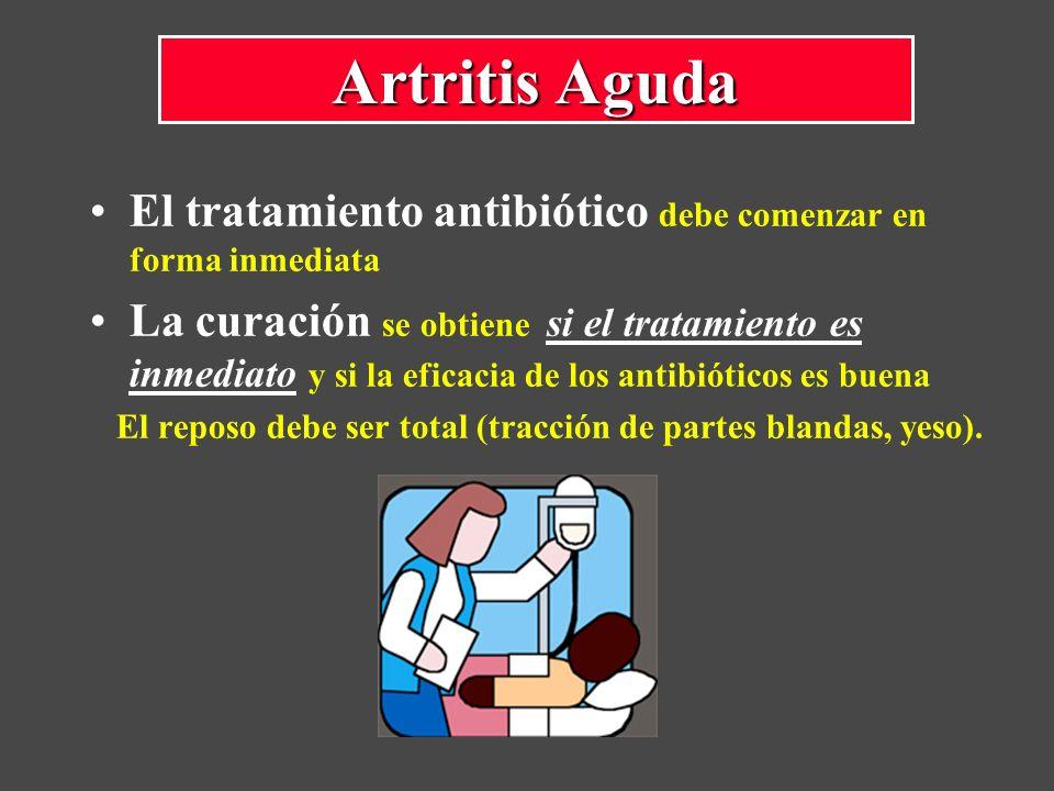 Artritis Aguda El tratamiento antibiótico debe comenzar en forma inmediata.