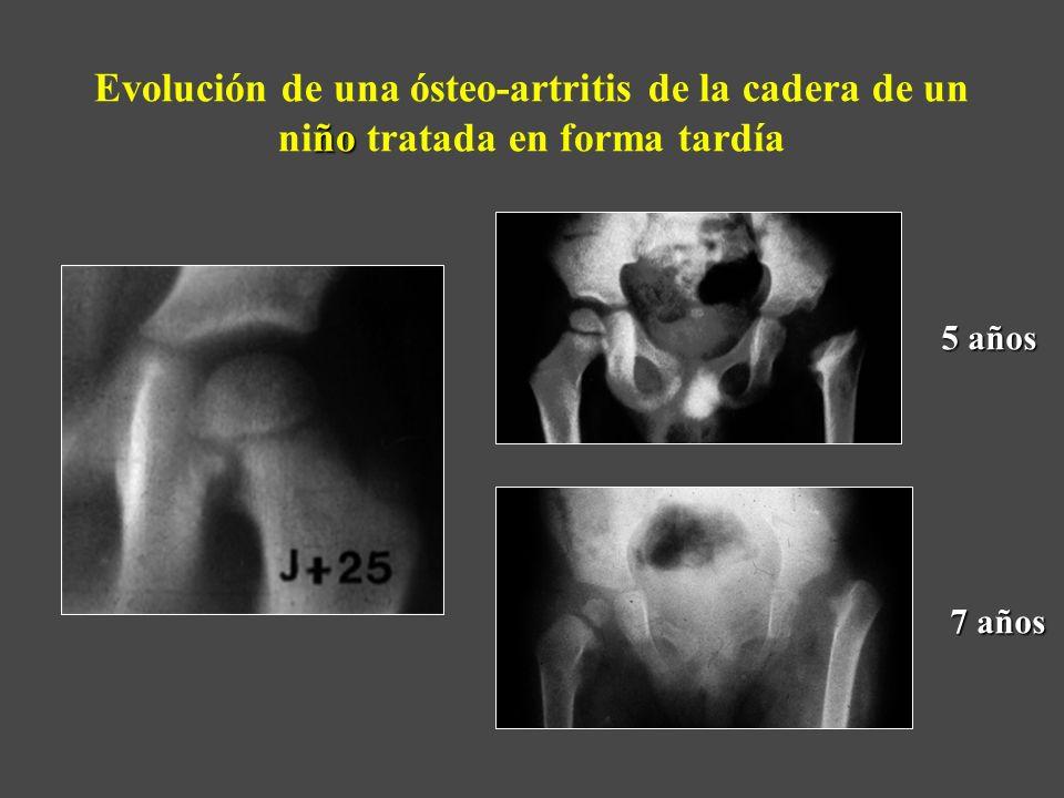Evolución de una ósteo-artritis de la cadera de un niño tratada en forma tardía