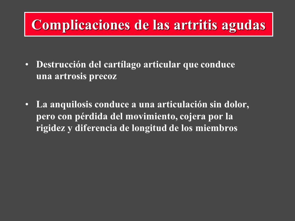 Complicaciones de las artritis agudas