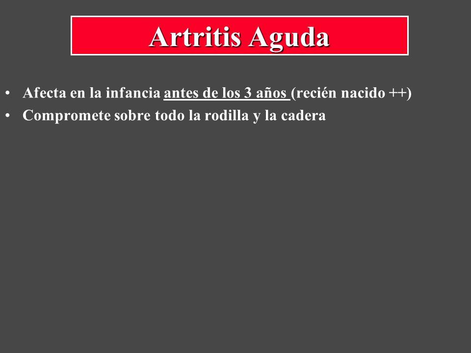 Artritis Aguda Afecta en la infancia antes de los 3 años (recién nacido ++) Compromete sobre todo la rodilla y la cadera.