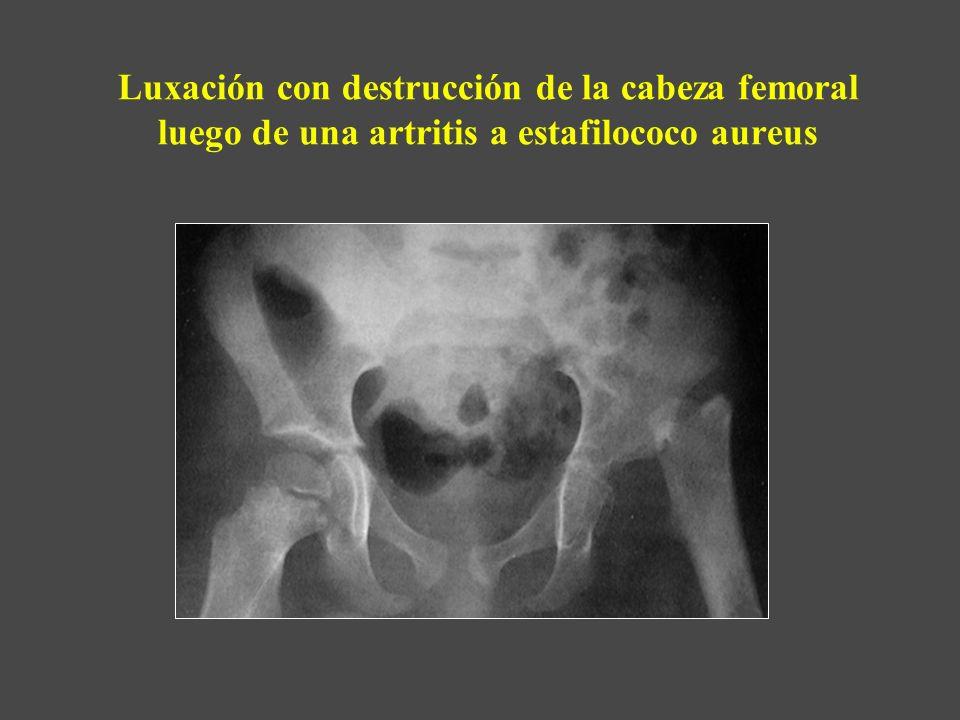 Luxación con destrucción de la cabeza femoral luego de una artritis a estafilococo aureus