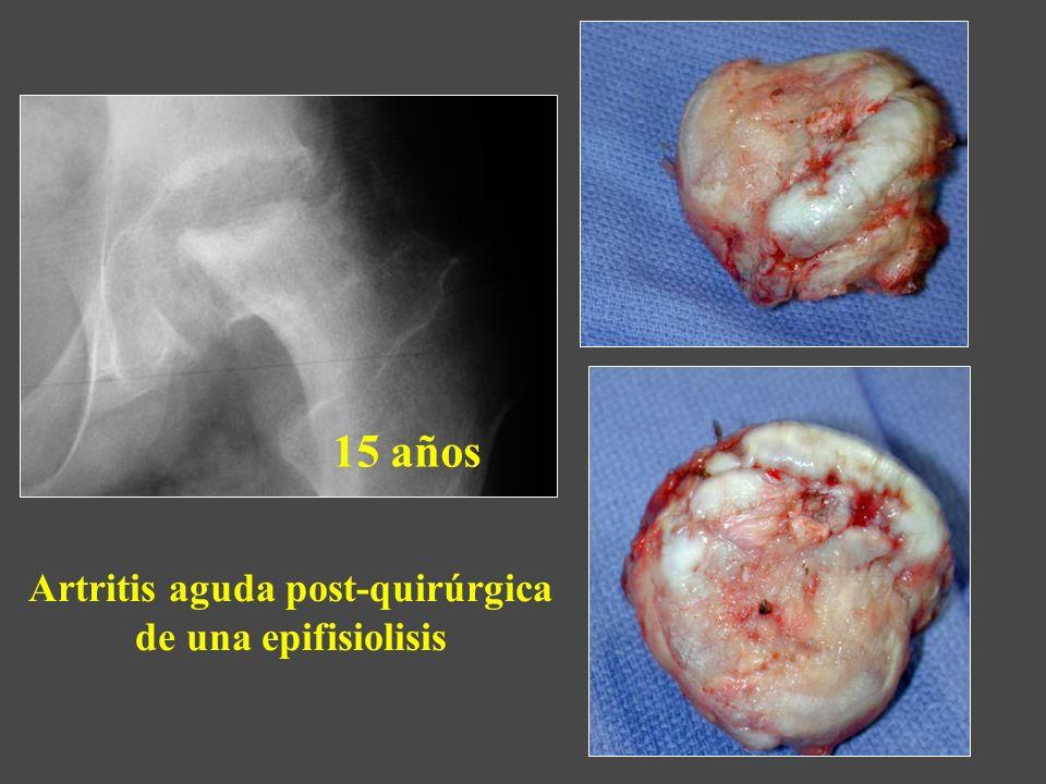 Artritis aguda post-quirúrgica de una epifisiolisis