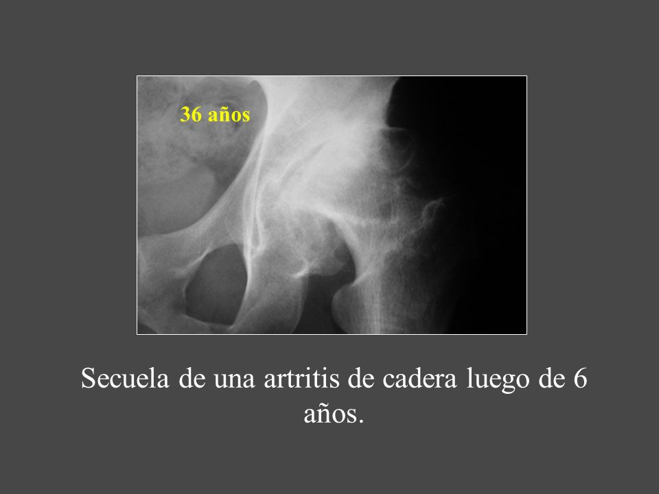 Secuela de una artritis de cadera luego de 6 años.