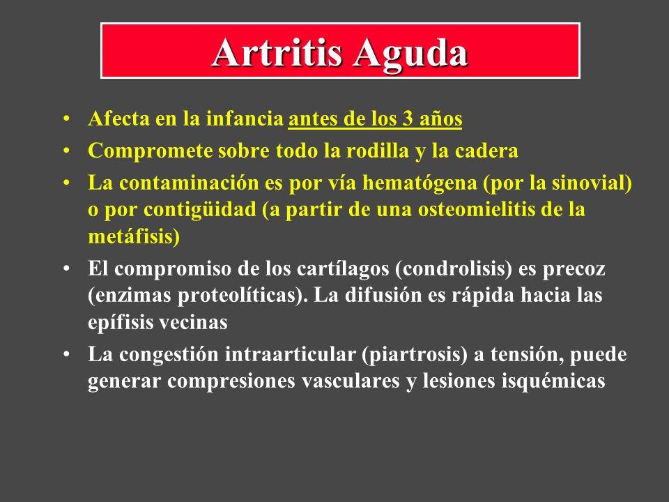 Artritis Aguda Afecta en la infancia antes de los 3 años