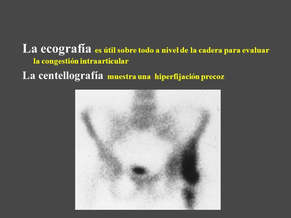 La ecografía es útil sobre todo a nivel de la cadera para evaluar la congestión intraarticular