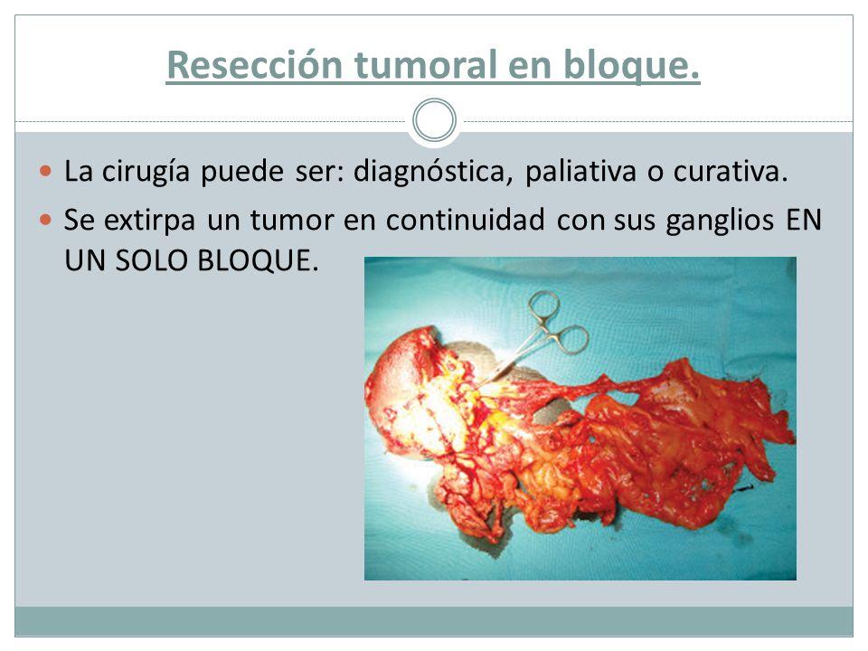 Resección tumoral en bloque.