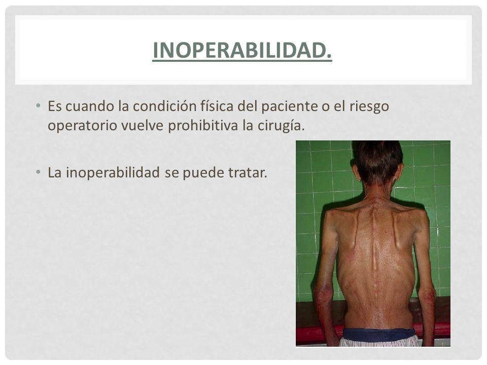 Inoperabilidad. Es cuando la condición física del paciente o el riesgo operatorio vuelve prohibitiva la cirugía.