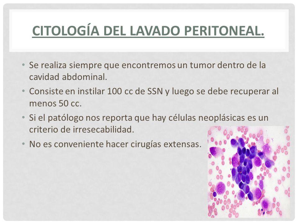 Citología del lavado peritoneal.