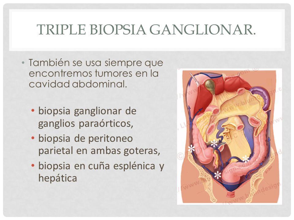 Triple biopsia ganglionar.