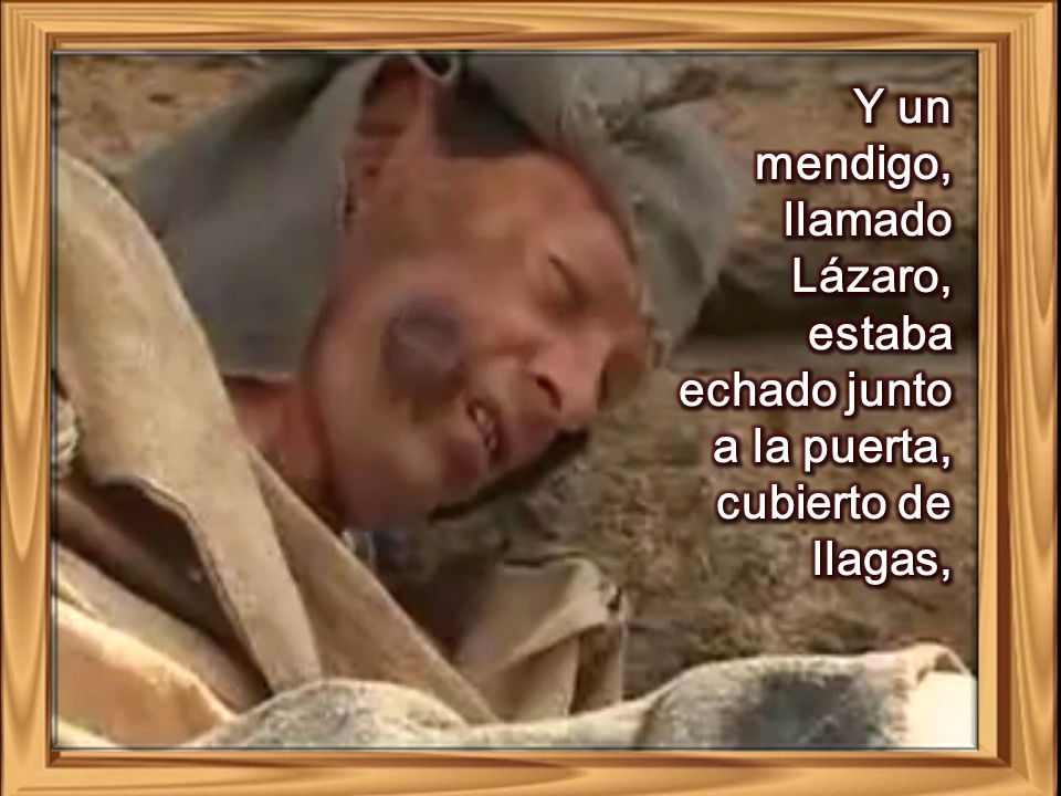 Y un mendigo, llamado Lázaro, estaba echado junto a la puerta, cubierto de llagas,
