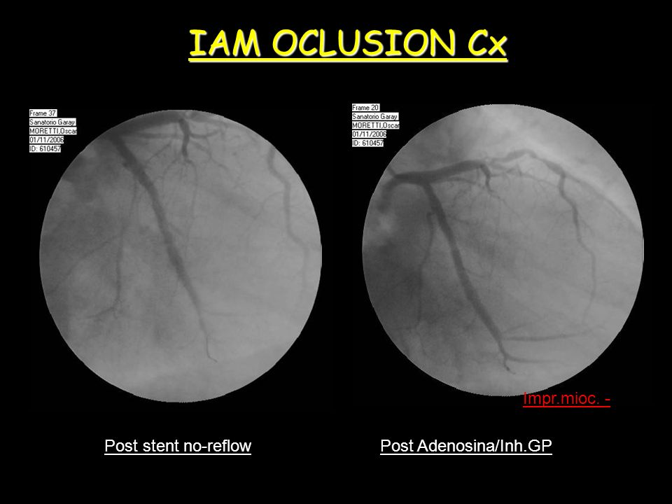 IAM OCLUSION Cx Impr.mioc. - Post stent no-reflow