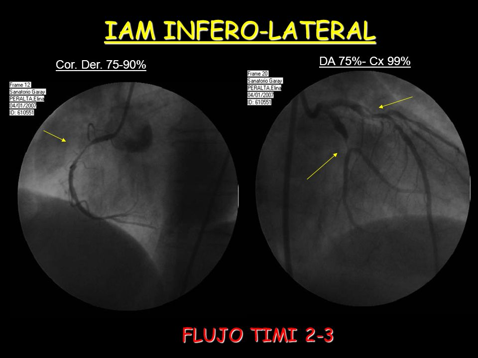 IAM INFERO-LATERAL DA 75%- Cx 99% Cor. Der. 75-90% FLUJO TIMI 2-3